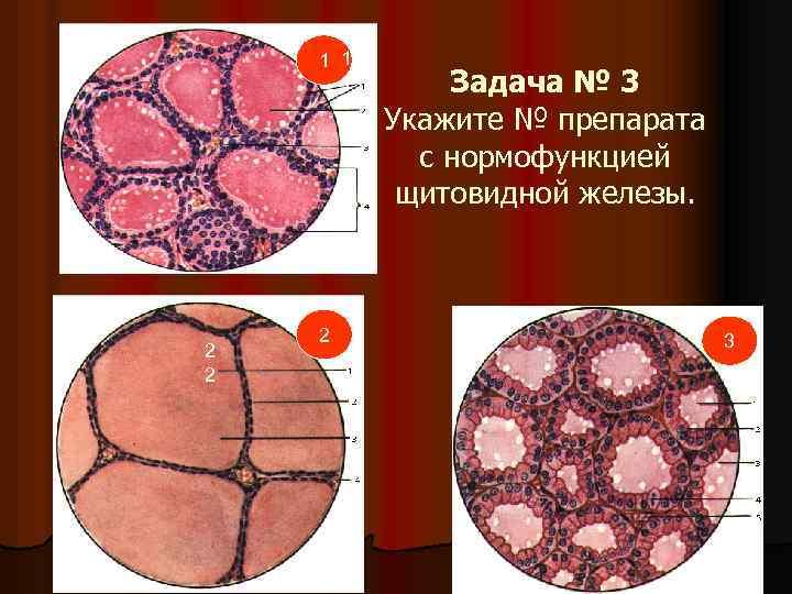 1 1 1 2 2 2 Задача № 3 Укажите № препарата с нормофункцией