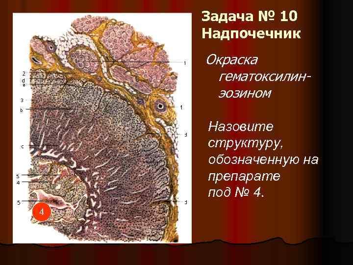 Задача № 10 Надпочечник Окраска гематоксилинэозином Назовите структуру, обозначенную на препарате под № 4.