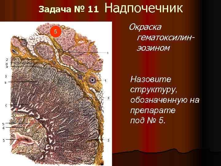 Задача № 11 5 Надпочечник Окраска гематоксилинэозином Назовите структуру, обозначенную на препарате под №