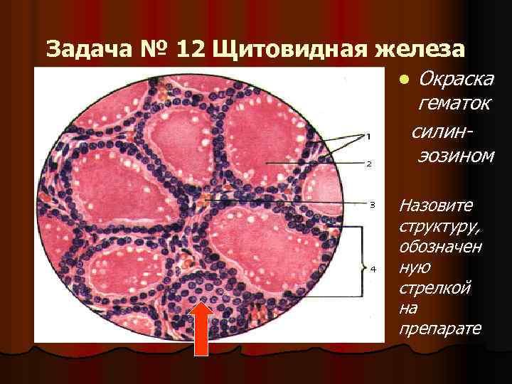 Задача № 12 Щитовидная железа Окраска гематок силинэозином l Назовите структуру, обозначен ную стрелкой