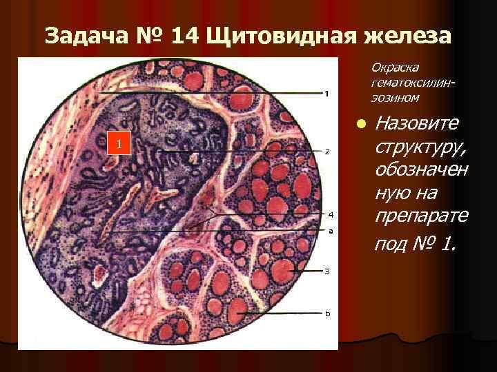 Задача № 14 Щитовидная железа Окраска гематоксилинэозином l 1 Назовите структуру, обозначен ную на