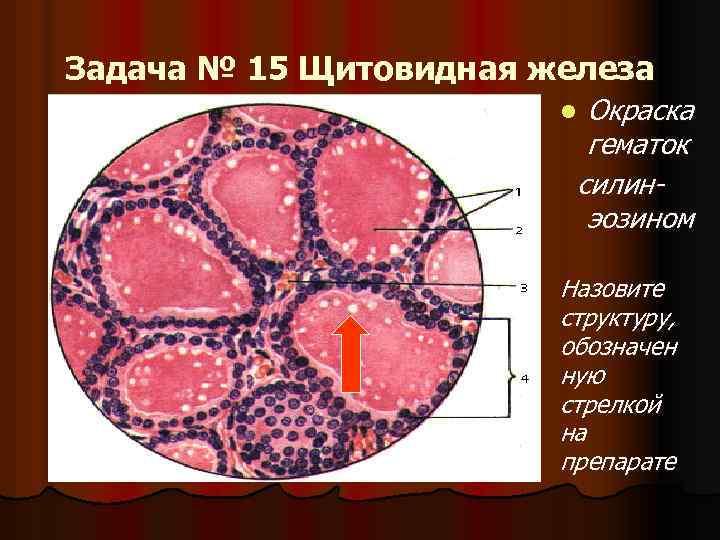 Задача № 15 Щитовидная железа Окраска гематок силинэозином l Назовите структуру, обозначен ную стрелкой