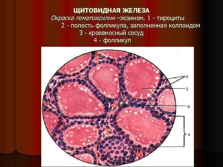 ЩИТОВИДНАЯ ЖЕЛЕЗА Окраска гематоксилин –эозином. 1 тироциты 2 полость фолликула, заполненная коллоидом 3 кровеносный