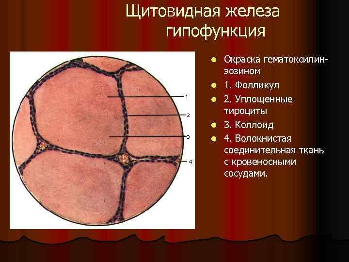 Щитовидная железа гипофункция l l l Окраска гематоксилин эозином 1. Фолликул 2. Уплощенные