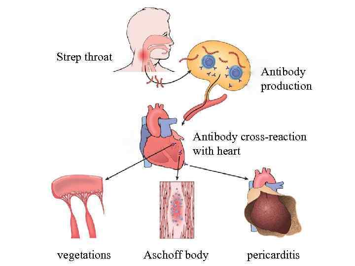 Strep throat Antibody production Antibody cross-reaction with heart vegetations Aschoff body pericarditis
