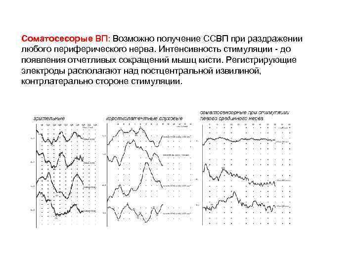 Соматосесорые ВП: Возможно получение ССВП при раздражении любого периферического нерва. Интенсивность стимуляции - до