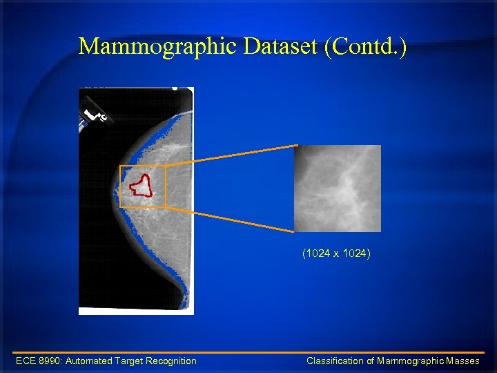 Mammographic Dataset (Contd. ) (1024 x 1024) ECE 8990: Automated Target Recognition Classification of