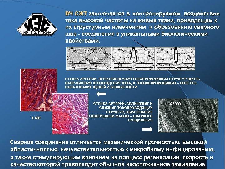 ВЧ СЖТ заключается в контролируемом воздействии тока высокой частоты на живые ткани, приводящем к