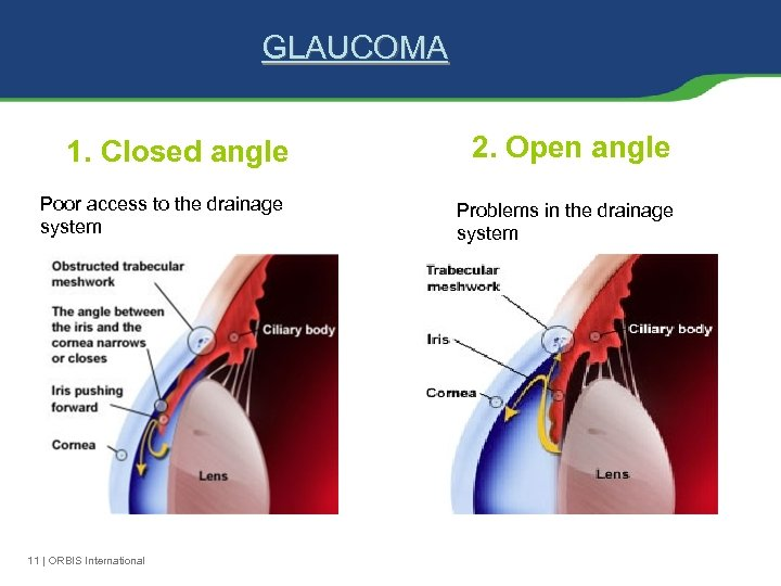 GLAUCOMA 1. Closed angle Poor access to the drainage system 11 | ORBIS International