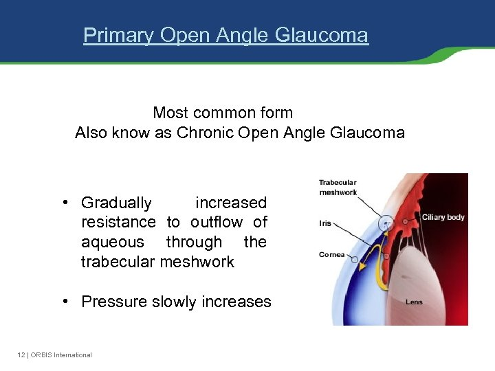 Primary Open Angle Glaucoma Most common form Also know as Chronic Open Angle Glaucoma