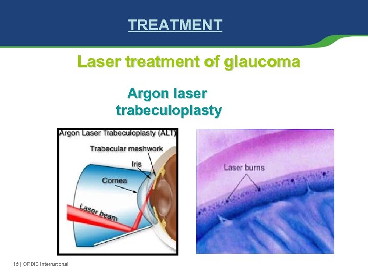 TREATMENT Laser treatment of glaucoma Argon laser trabeculoplasty 18 | ORBIS International