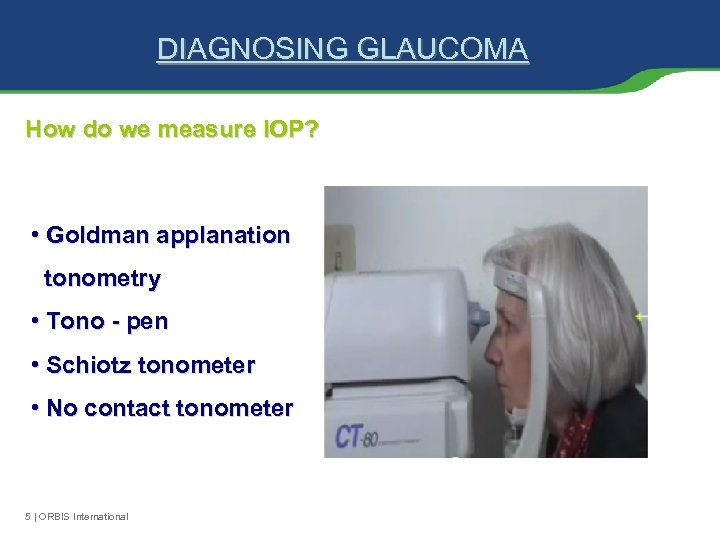 DIAGNOSING GLAUCOMA How do we measure IOP? • Goldman applanation tonometry • Tono -