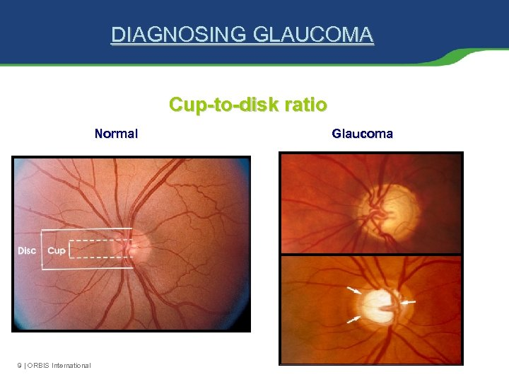 DIAGNOSING GLAUCOMA Cup-to-disk ratio Normal 9 | ORBIS International Glaucoma