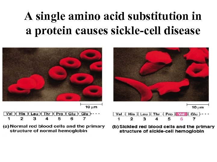 A single amino acid substitution in a protein causes sickle-cell disease