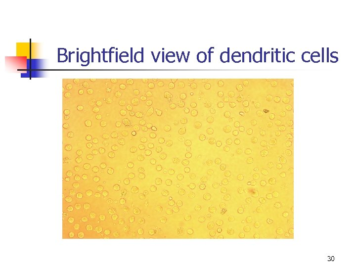 Brightfield view of dendritic cells 30