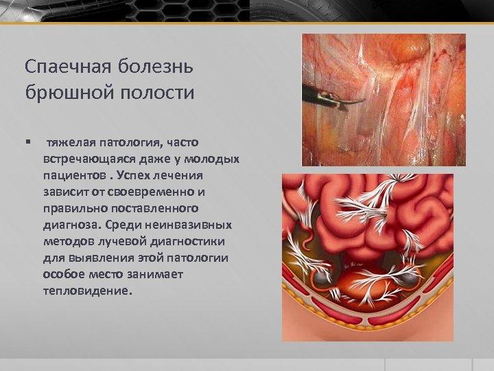 Спаечная болезнь брюшной полости § тяжелая патология, часто встречающаяся даже у молодых пациентов. Успех