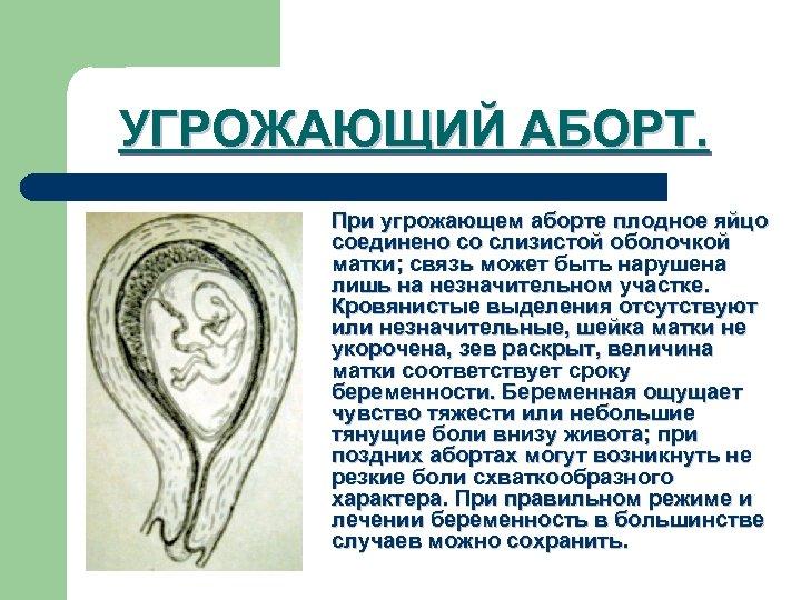 УГРОЖАЮЩИЙ АБОРТ. При угрожающем аборте плодное яйцо соединено со слизистой оболочкой матки; связь может