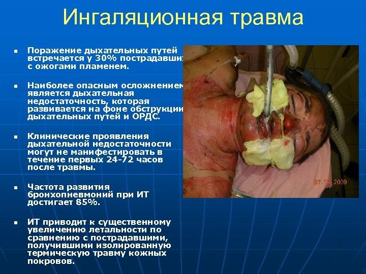 Ингаляционная травма n n n Поражение дыхательных путей встречается у 30% пострадавших с ожогами