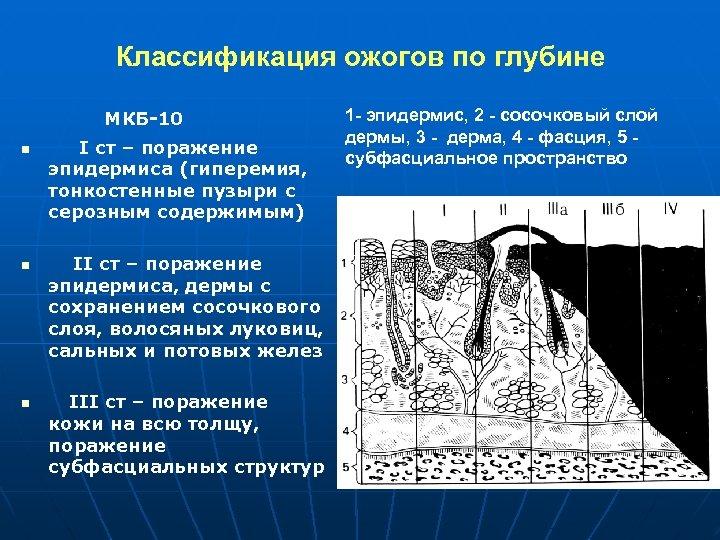 Классификация ожогов по глубине МКБ-10 n n n I ст – поражение эпидермиса (гиперемия,