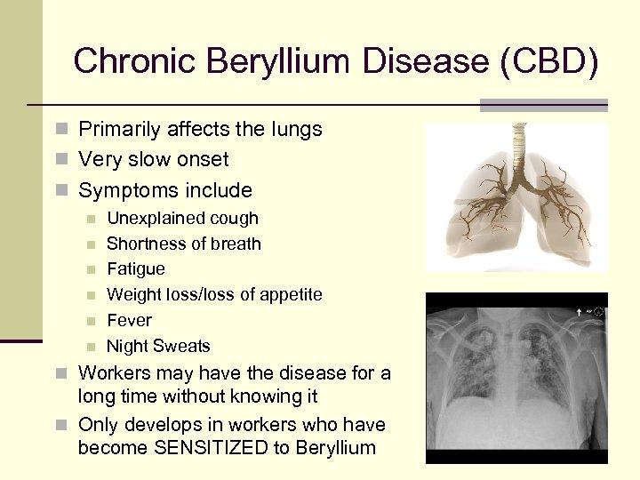 Chronic Beryllium Disease (CBD) n Primarily affects the lungs n Very slow onset n