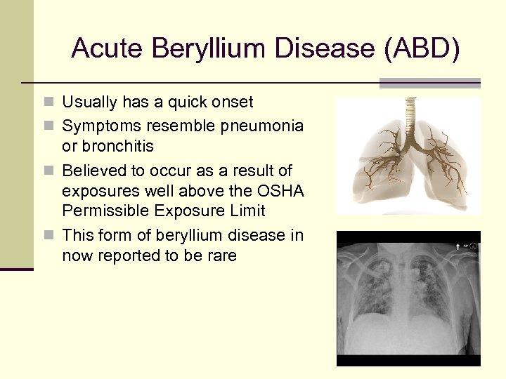 Acute Beryllium Disease (ABD) n Usually has a quick onset n Symptoms resemble pneumonia