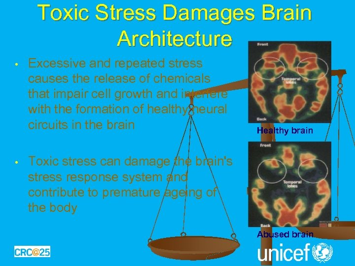 Toxic Stress Damages Brain Architecture • • Excessive and repeated stress causes the release