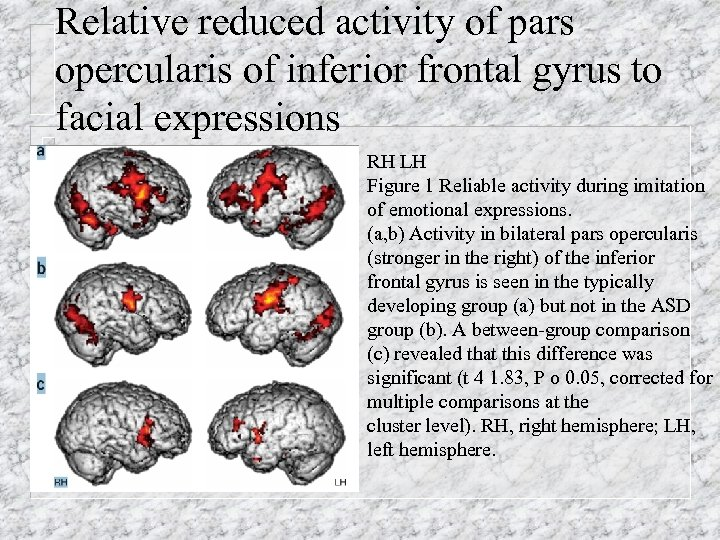 Relative reduced activity of pars opercularis of inferior frontal gyrus to facial expressions RH
