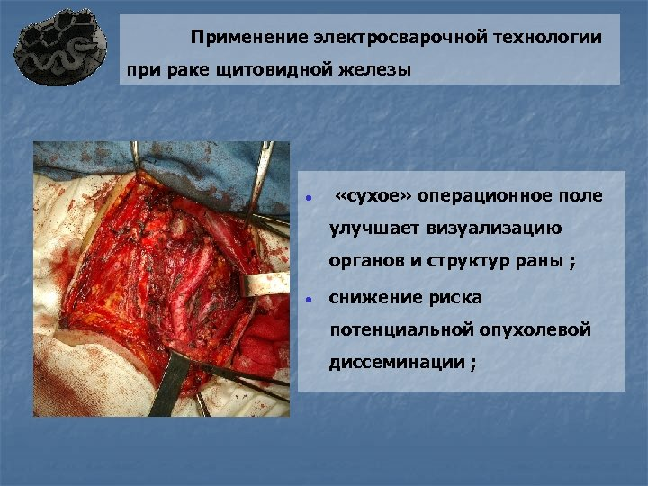 Применение электросварочной технологии при раке щитовидной железы ● «сухое» операционное поле улучшает визуализацию органов