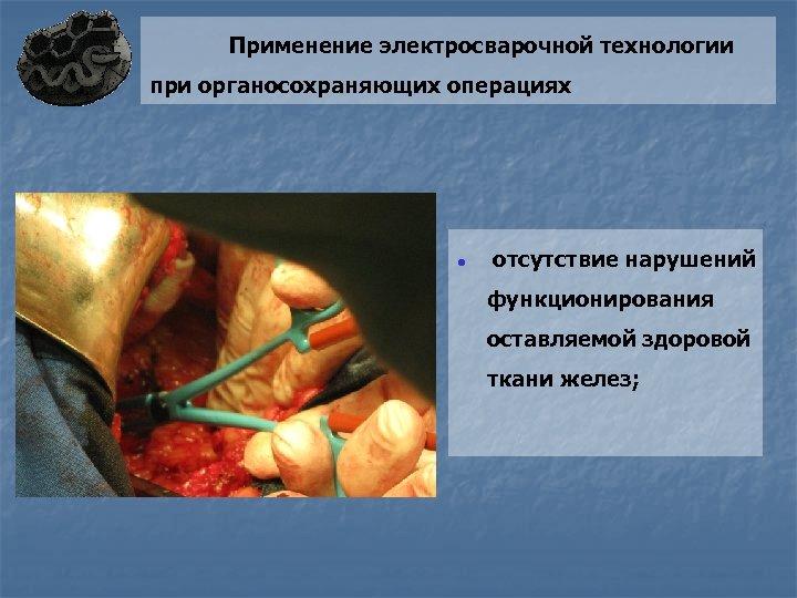 Применение электросварочной технологии при органосохраняющих операциях ● отсутствие нарушений функционирования оставляемой здоровой ткани желез;