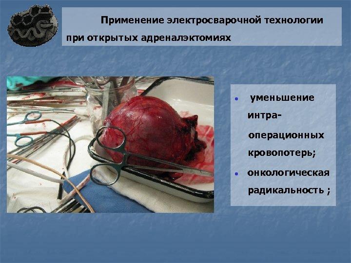 Применение электросварочной технологии при открытых адреналэктомиях ● уменьшение интраоперационных кровопотерь; ● онкологическая радикальность ;