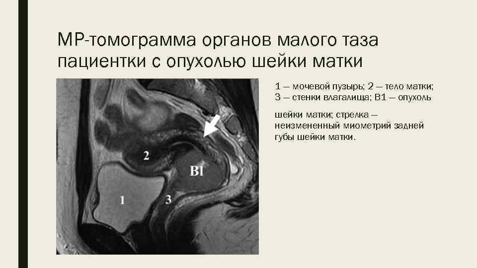 Признаки рака шейки матки наиболее часто развиваются у пациенток в возрасте больше 40 лет.