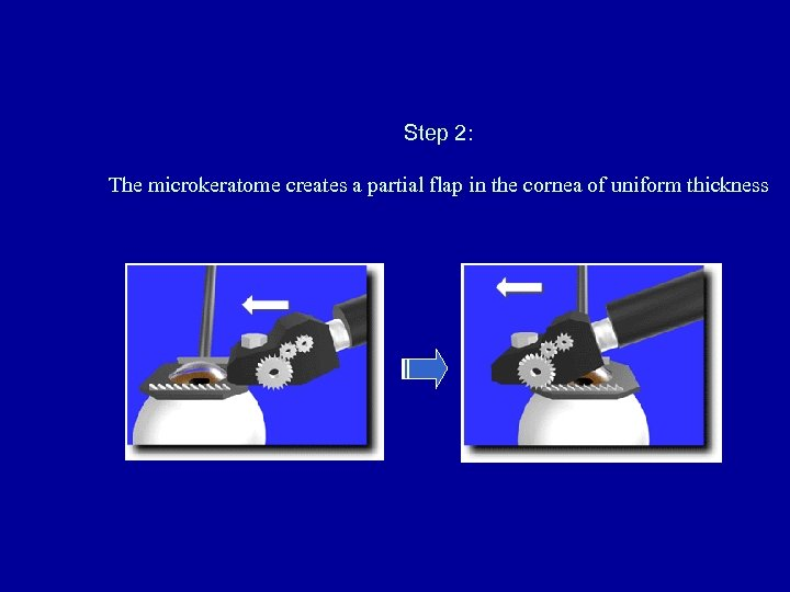 Step 2: The microkeratome creates a partial flap in the cornea of uniform thickness
