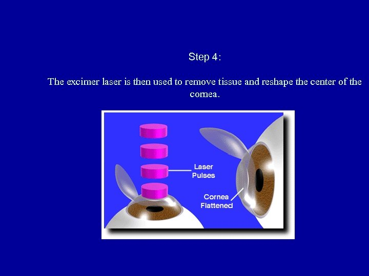 Step 4: The excimer laser is then used to remove tissue and reshape the