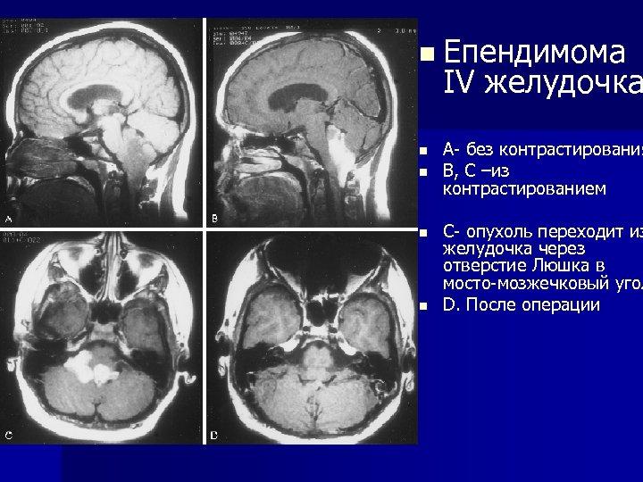 n Епендимома IV желудочка n n А- без контрастирования В, C –из контрастированием С-