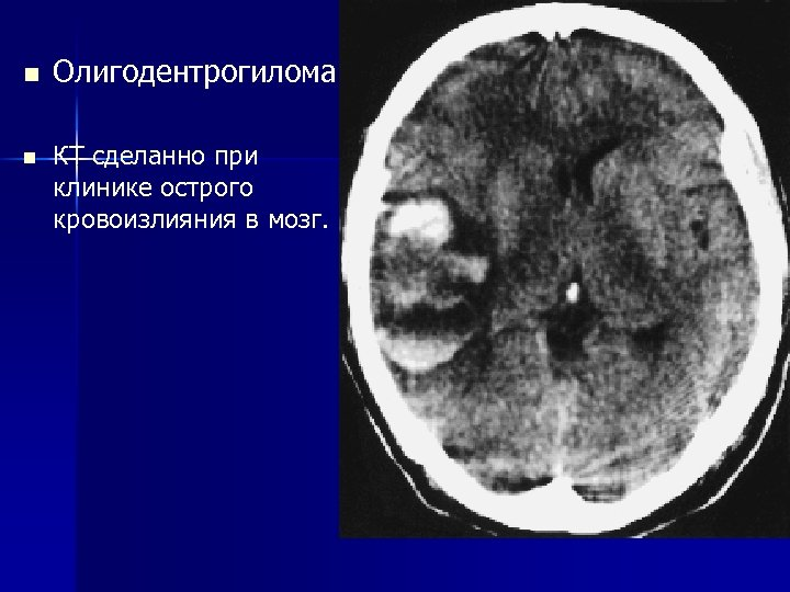 n n Олигодентрогилома КТ сделанно при клинике острого кровоизлияния в мозг.