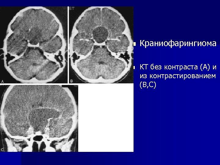 n n Краниофарингиома КТ без контраста (А) и из контрастированием (В, С)