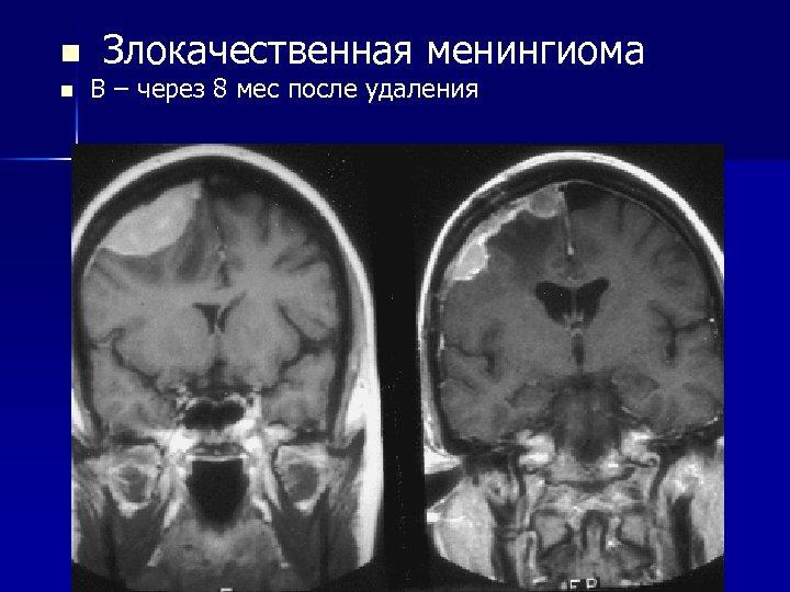 n Злокачественная менингиома n В – через 8 мес после удаления
