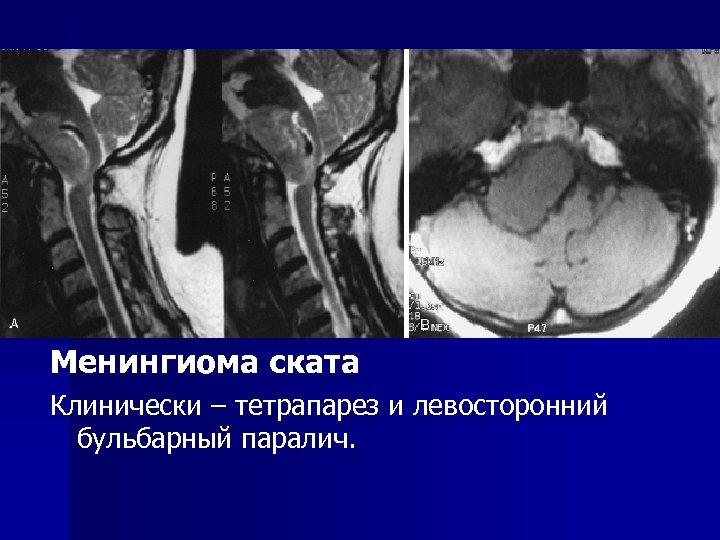 Менингиома ската Клинически – тетрапарез и левосторонний бульбарный паралич.