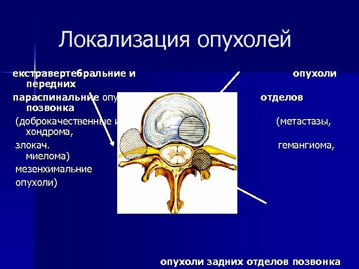 Локализация опухолей екстравертебральние и передних параспинальние опухоли позвонка (доброкачественные и хондрома, злокач. миелома) мезенхимальние
