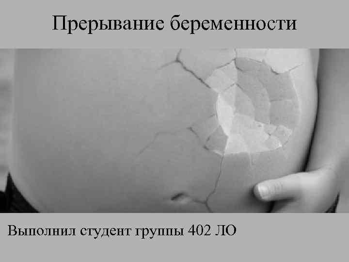 Прерывание беременности Выполнил студент группы 402 ЛО