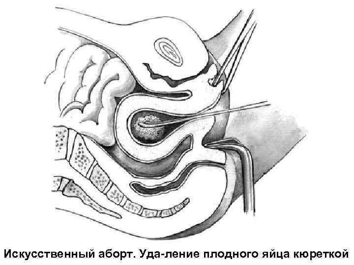 Искусственный аборт. Уда-ление плодного яйца кюреткой