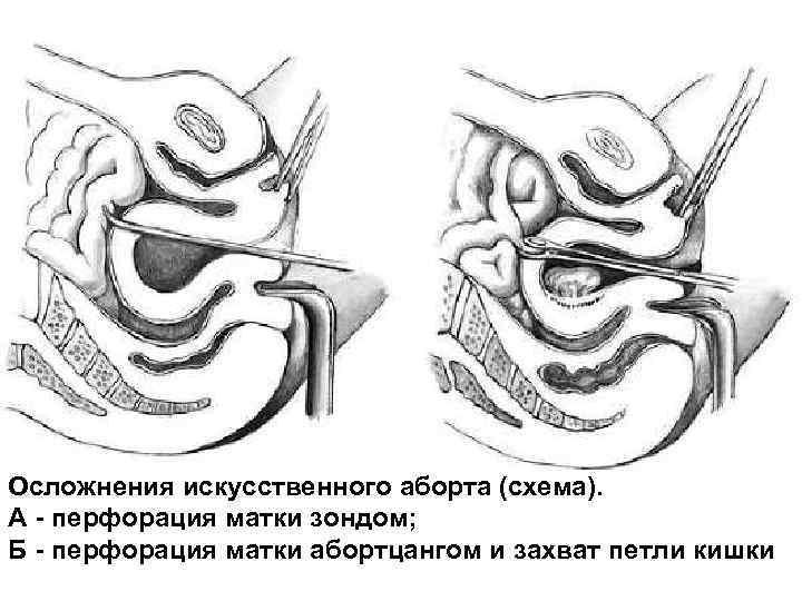 Осложнения искусственного аборта (схема). А - перфорация матки зондом; Б - перфорация матки абортцангом