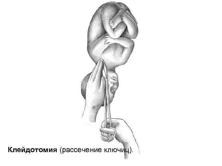 Клейдотомия (рассечение ключиц).