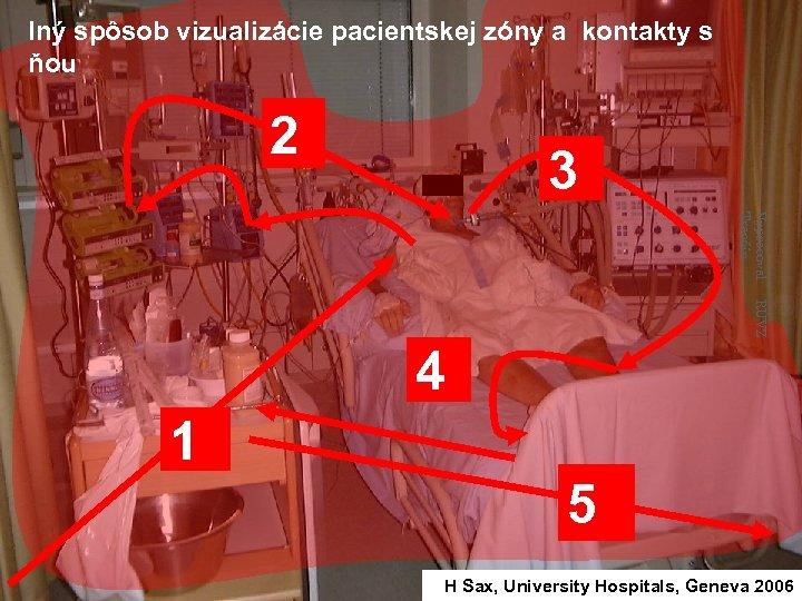 Iný spôsob vizualizácie pacientskej zóny a kontakty s ňou 2 3 Vypracoval: Trenčín RÚVZ