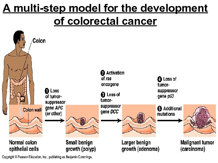 A multi-step model for the development of colorectal cancer