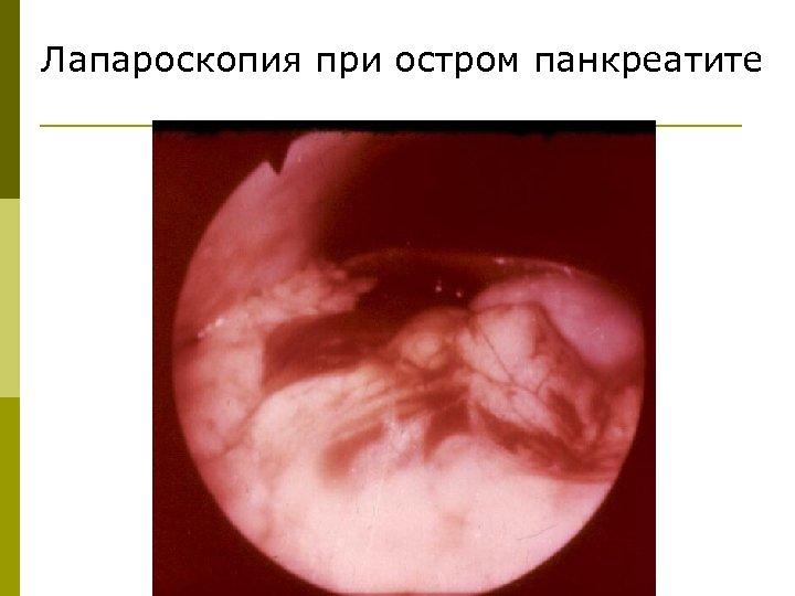 Лапароскопия при остром панкреатите