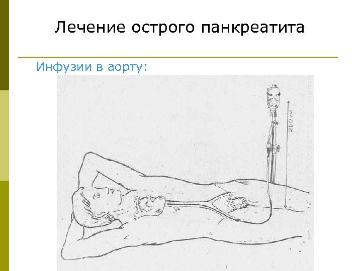 Лечение острого панкреатита Инфузии в аорту: