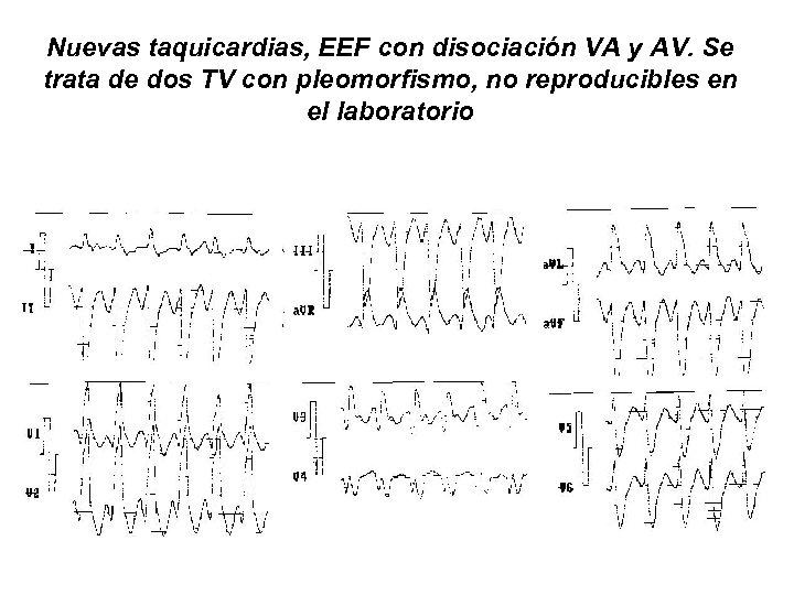 Nuevas taquicardias, EEF con disociación VA y AV. Se trata de dos TV con