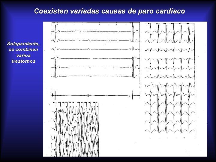 Coexisten variadas causas de paro cardiaco Solapamiento, se combinan varios trastornos