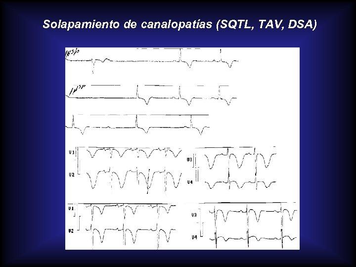 Solapamiento de canalopatías (SQTL, TAV, DSA)